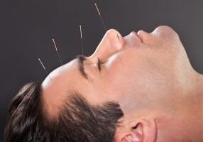 Close-up Of A Young Man Undergoing Acupuncture Treatment At Spa