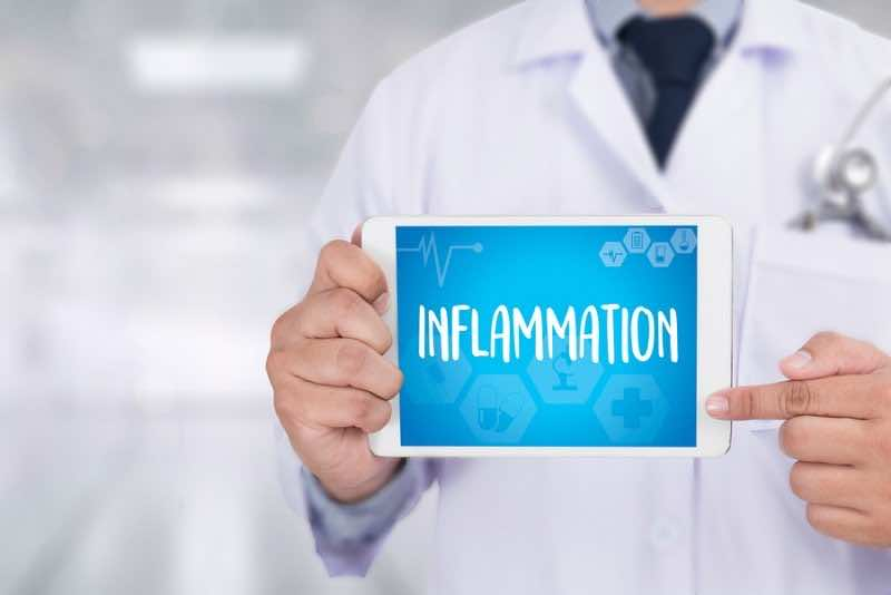 Inflammation   Joint Inflammation Concept ,  Inflammation - Medi